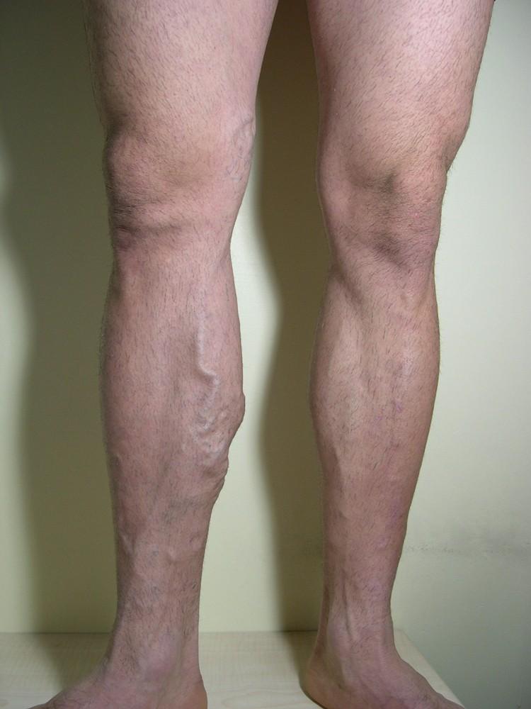 decât trata vene varicoase pe picioarele tabletei rularea cazului varicoză