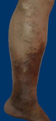 puteți alege piciorul cu varicoză start stage varicose fotografie